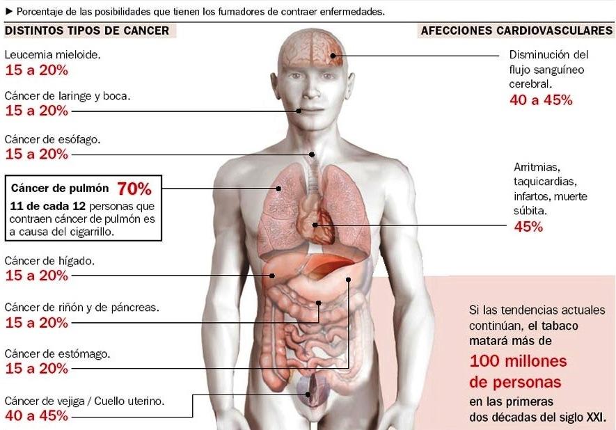 Riesgos para la salud al fumar